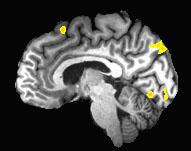 Arrowsmith_fMRI1[1]