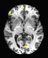 Arrowsmith_fMRI2