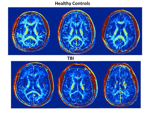 tbi-brain-scans-web2