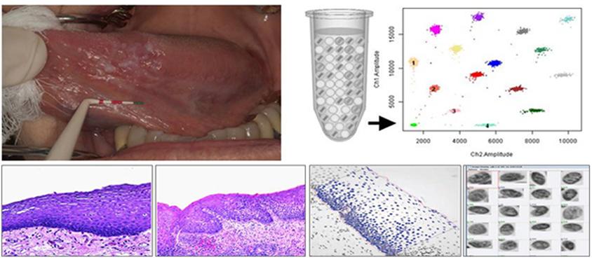 A16 Oral Cancer - LP_FINAL